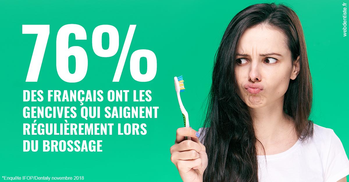 https://dr-laupie-julien.chirurgiens-dentistes.fr/76% des Français 1