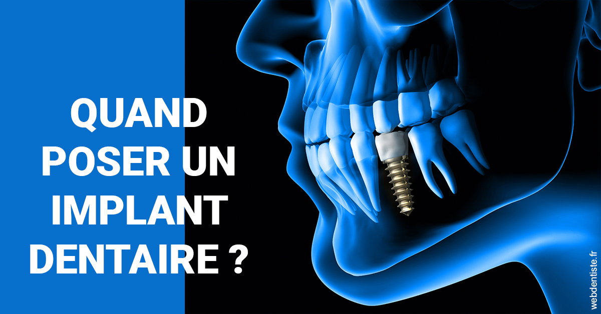 https://dr-laupie-julien.chirurgiens-dentistes.fr/Les implants 1